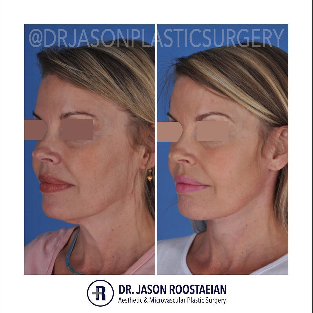 A left oblique before and after view of Dr. Jason Roostaeian's female facelift neck lift patient