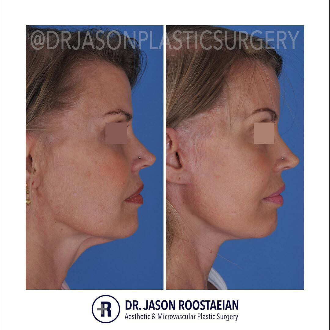A right lateral before and after view of Dr. Jason Roostaeian's female facelift neck lift patient