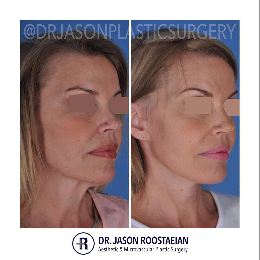 A right oblique before and after view of Dr. Jason Roostaeian's female facelift neck lift patient