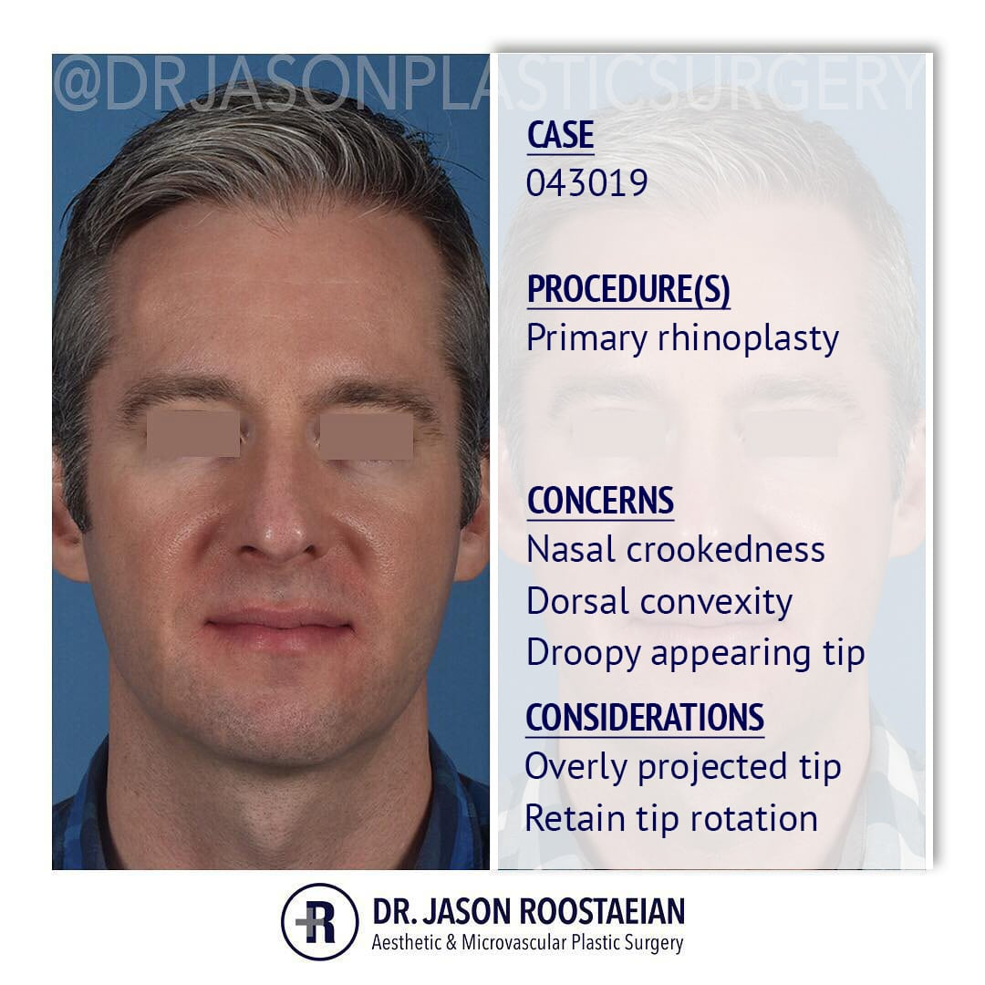 A frontal description view of Dr. Jason Roostaeian's male rhinoplasty patient
