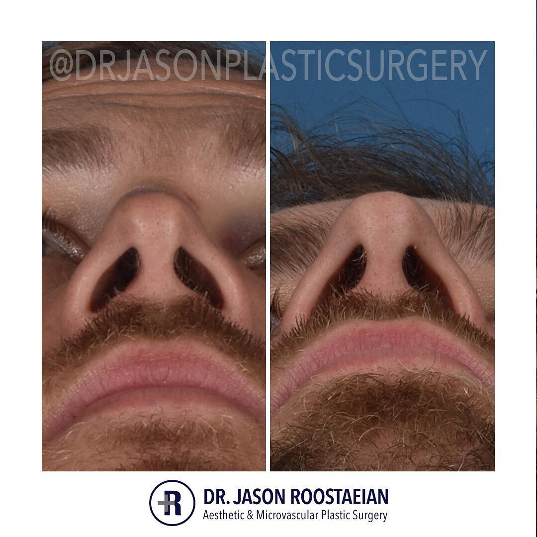 A basal before and after view of Dr. Jason Roostaeian's male rhinoplasty patient