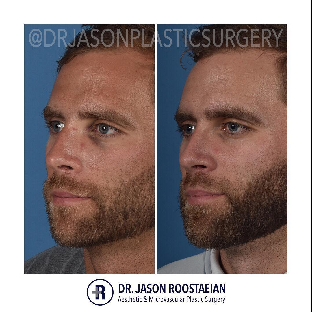 A left oblique before and after view of Dr. Jason Roostaeian's male rhinoplasty patient