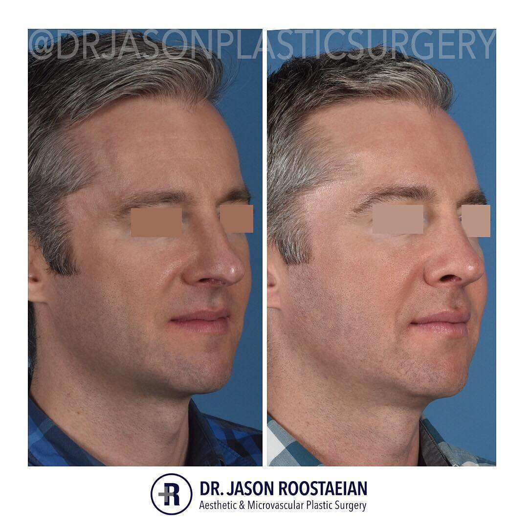 A right oblique before and after view of Dr. Jason Roostaeian's male rhinoplasty patient