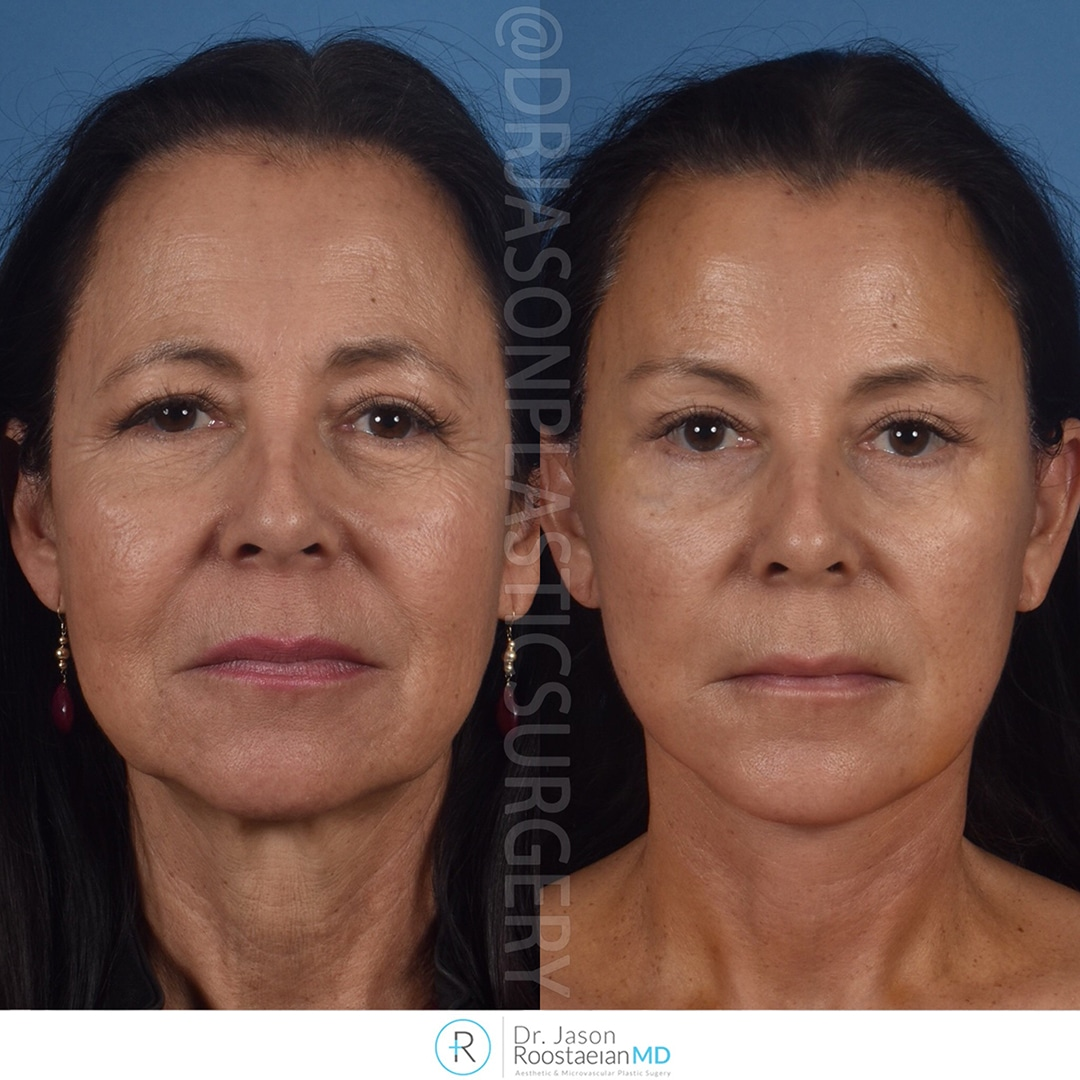 A frontal view before and after photograph of Dr. Jason Roostaeian's brow, neck and facelift patient at one week