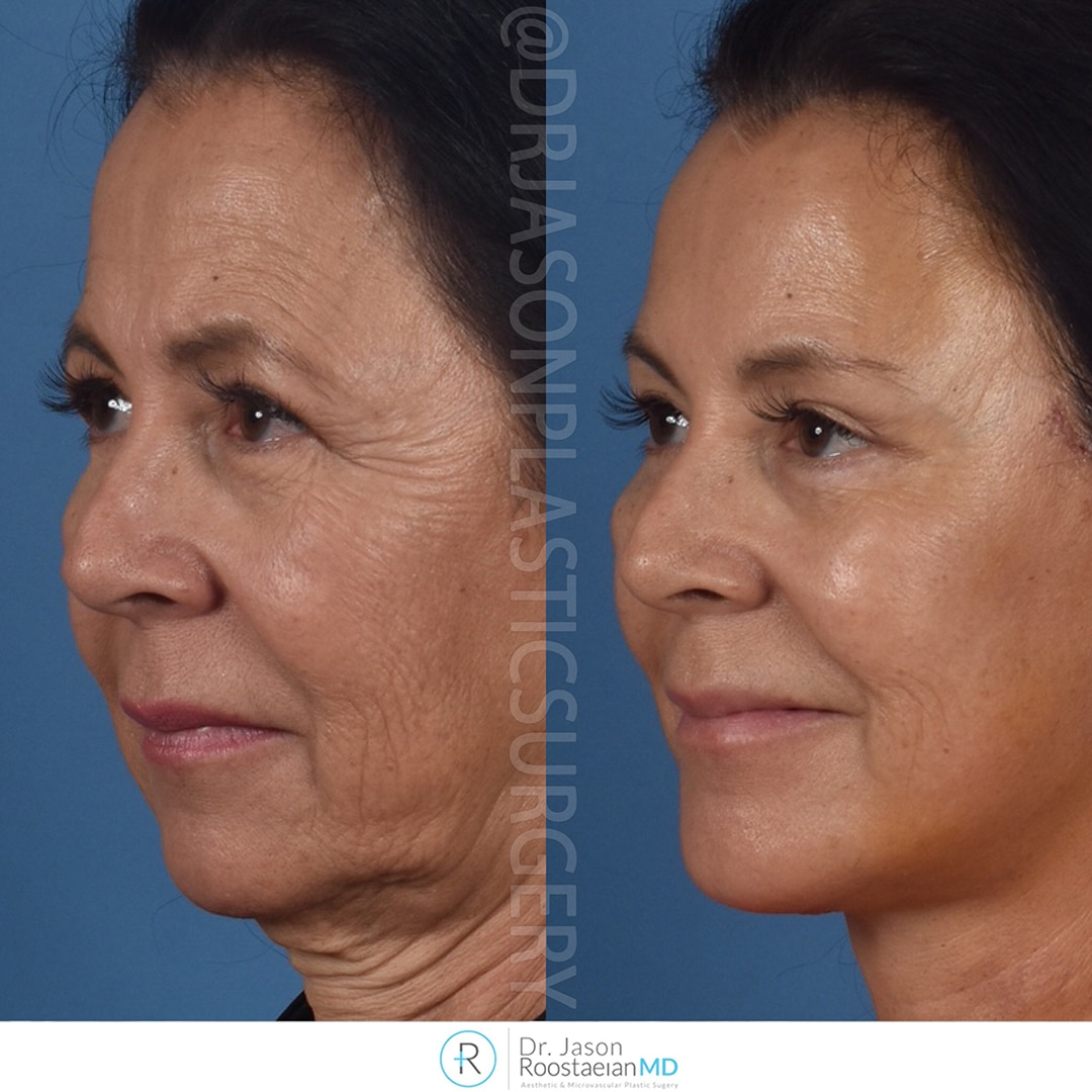 A left oblique view before and after photograph of Dr. Jason Roostaeian's brow, neck and facelift patient at one week
