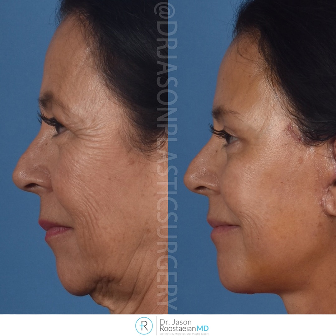 A left lateral view before and after photograph of Dr. Jason Roostaeian's brow, neck and facelift patient at one week