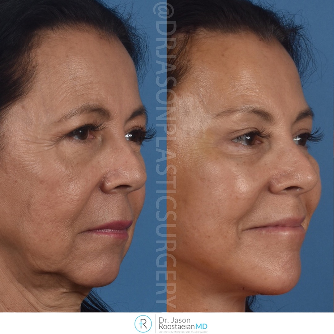 A right oblique view before and after photograph of Dr. Jason Roostaeian's brow, neck and facelift patient at one week