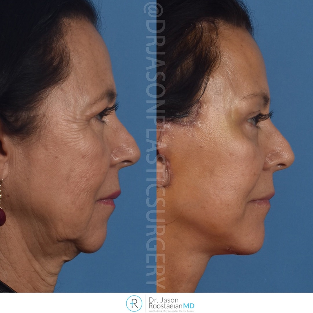 A right lateral view before and after photograph of Dr. Jason Roostaeian's brow, neck and facelift patient at one week