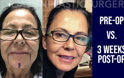 Dr. Jason's One Week Brow, Neck and Facelift Results