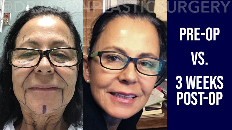 A photo of Dr. Jason Roostaeian's brow, neck and facelift patient right before surgery and one week after surgery