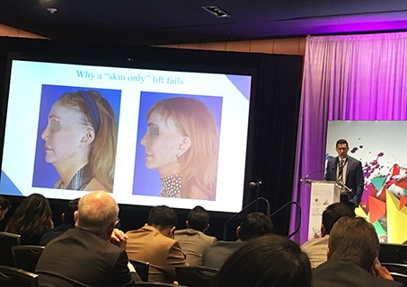 A photo of Dr. Jason Roostaeian presenting a facelift lecture at the ASAPS 2019 Meeting
