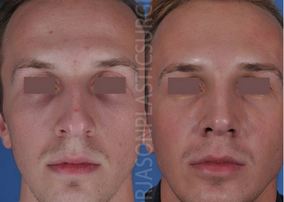 A frontal before and after view of Dr. Jason Roostaeian's natural looking rhinoplasty male patient