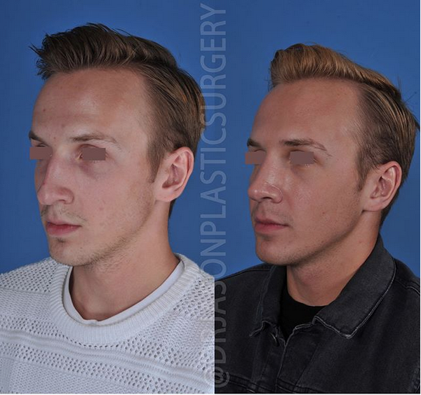 A left oblique before and after view of Dr. Jason Roostaeian's natural looking rhinoplasty male patient