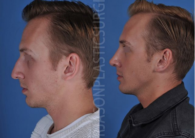 A left lateral before and after view of Dr. Jason Roostaeian's natural looking rhinoplasty male patient
