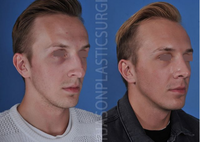 A right oblique before and after view of Dr. Jason Roostaeian's natural looking rhinoplasty male patient