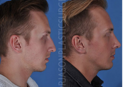 A right lateral before and after view of Dr. Jason Roostaeian's natural looking rhinoplasty male patient