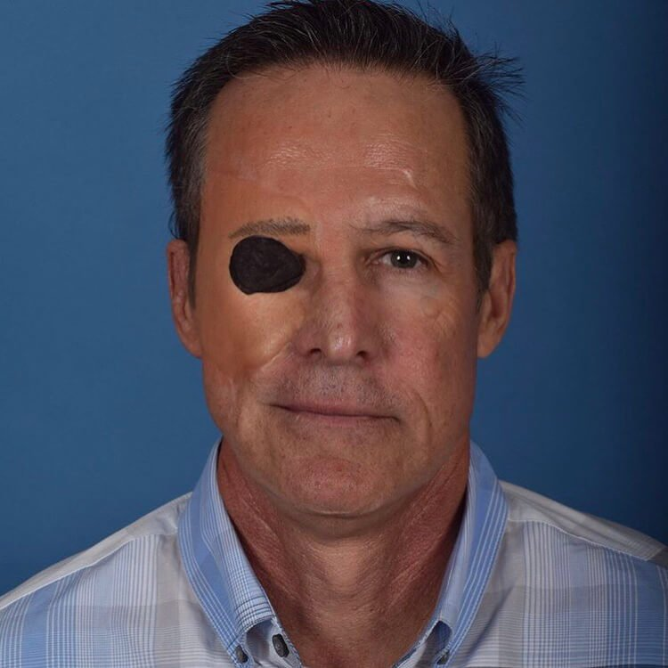 A frontal after view of Dr. Jason Roostaeian's male facial trauma reconstruction patient
