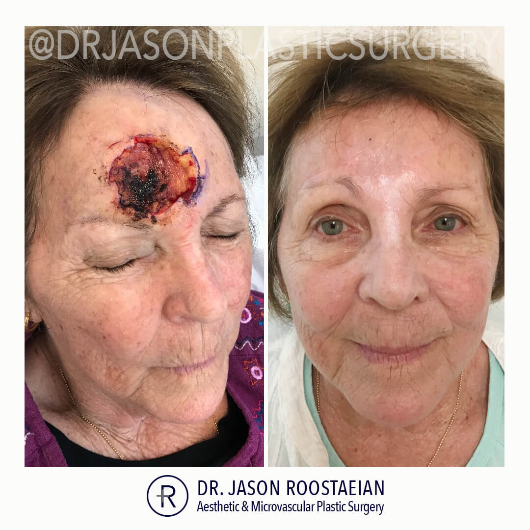 An frontal before and after view of Dr. Jason Roostaeian's female MOHS skin cancer reconstruction patient