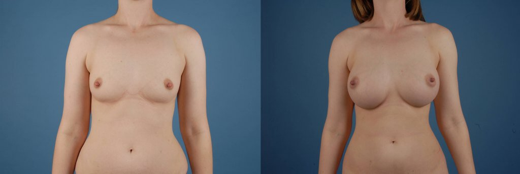 A frontal before and after view of Dr. Jason Roostaeian's natural looking breast augmentation patient
