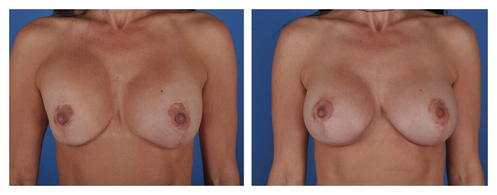 A frontal before and after view of Dr. Jason Roostaeian's natural looking breast augmentation revision patient