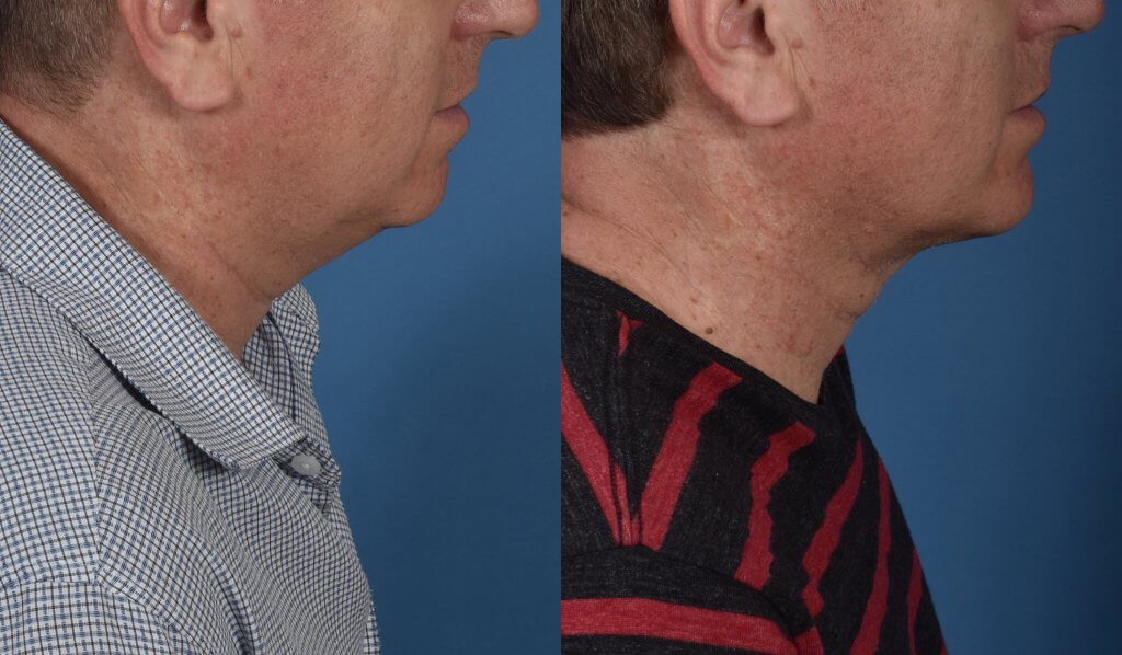 A left lateral before and after view of Dr. Jason Roostaeian's natural looking male neck lift los angeles patient