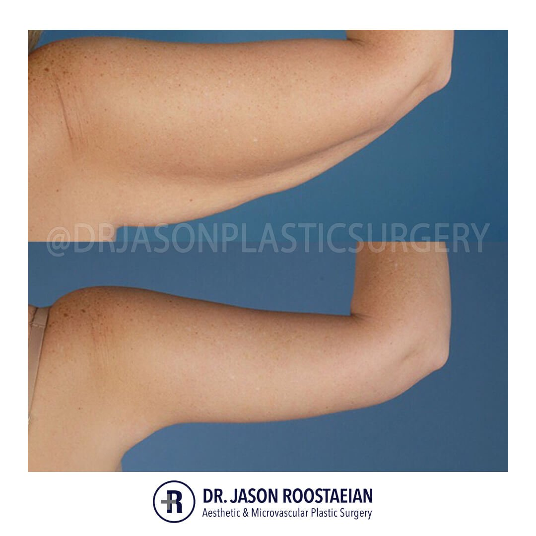 A right posterior before and after view of Dr. Jason Roostaeian's natural looking arm lift female patient