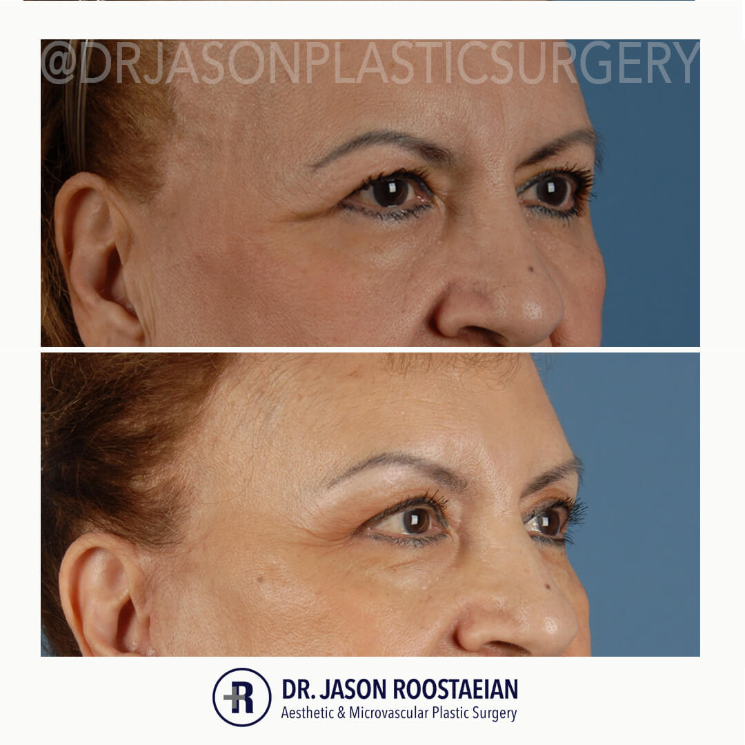 A right oblique before and after photo of Dr. Jason Roostaeian's natural looking brow lift female patient