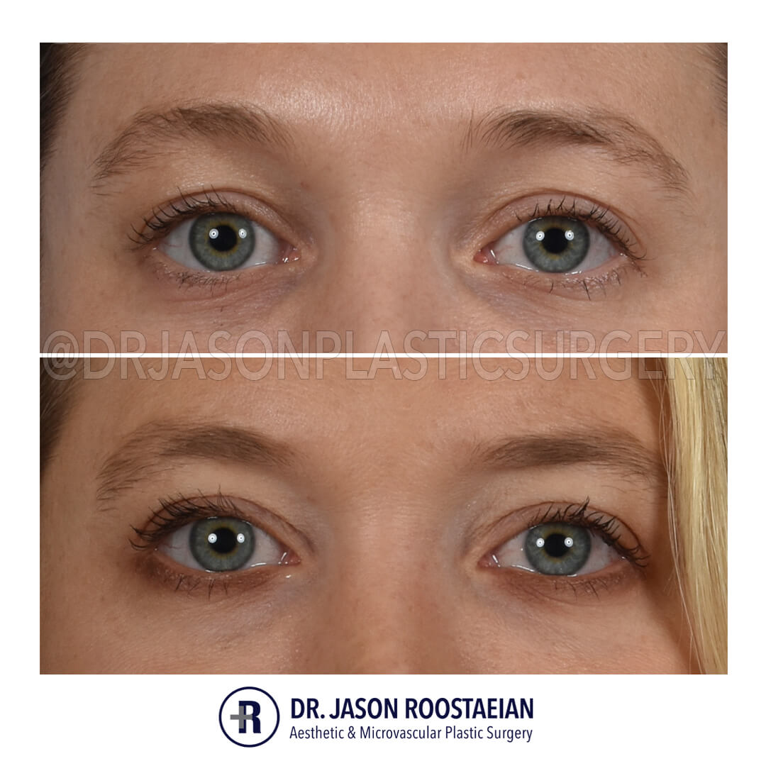 A frontal before and after view of Dr. Jason Roostaeian's natural looking eye lift female patient