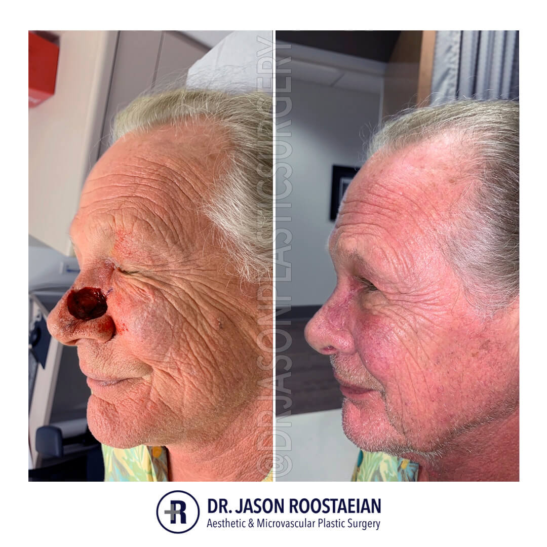A left lateral before and after view of Dr. Jason Roostaeian's MOHS skin cancer reconstruction male patient