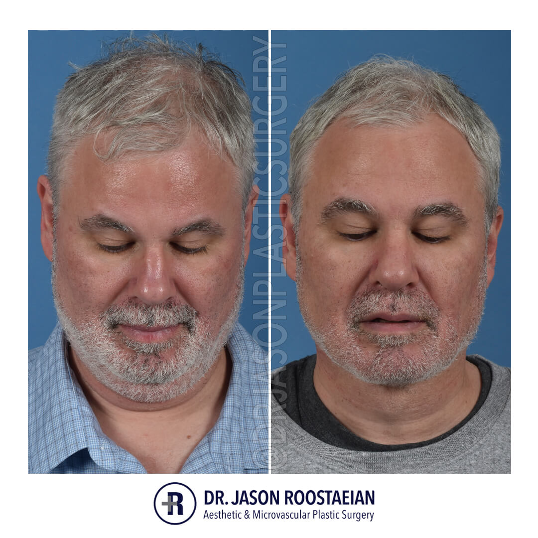 A downward facing before and after view of Dr. Jason Roostaeian's natural looking male neck lift los angeles patient