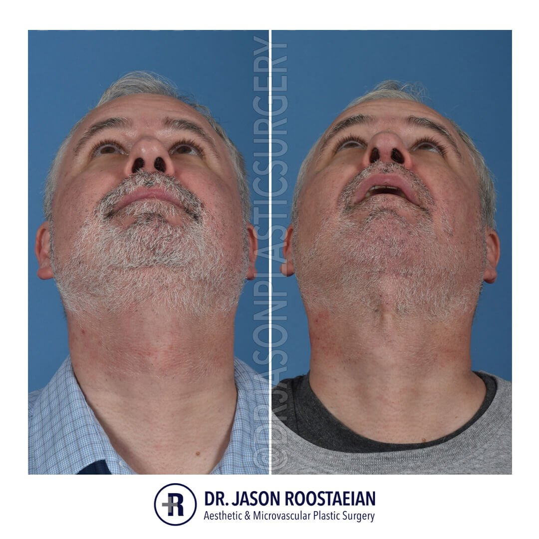 A basal before and after view of Dr. Jason Roostaeian's natural looking male neck lift los angeles patient