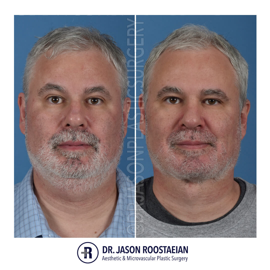 A frontal before and after view of Dr. Jason Roostaeian's natural looking male neck lift los angeles patient