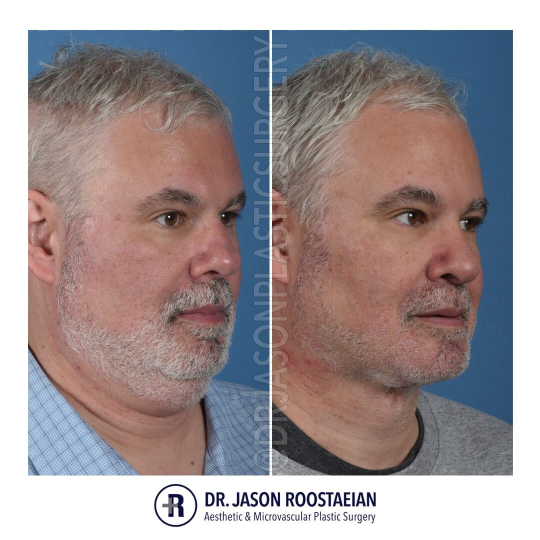 A right oblique before and after view of Dr. Jason Roostaeian's natural looking male neck lift los angeles patient