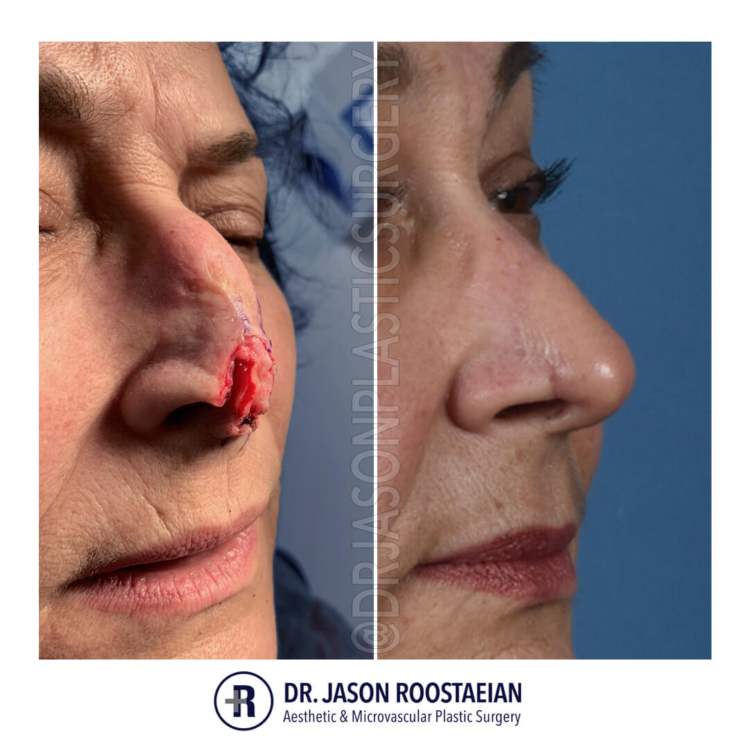 A right oblique before and after view of Dr. Jason Roostaeian's female MOHS skin cancer reconstruction patient