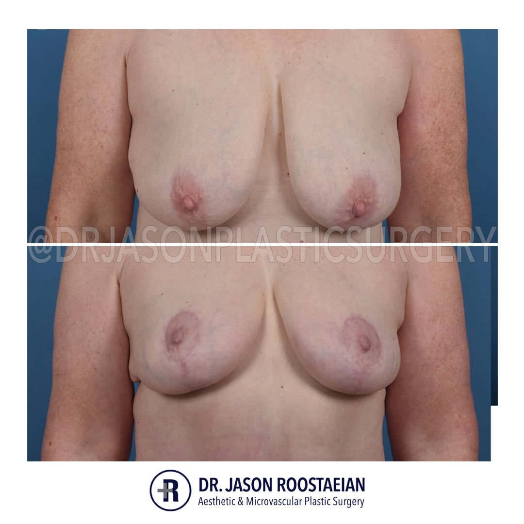 A frontal view of Dr. Jason Roostaeian's natural looking breast lift patient