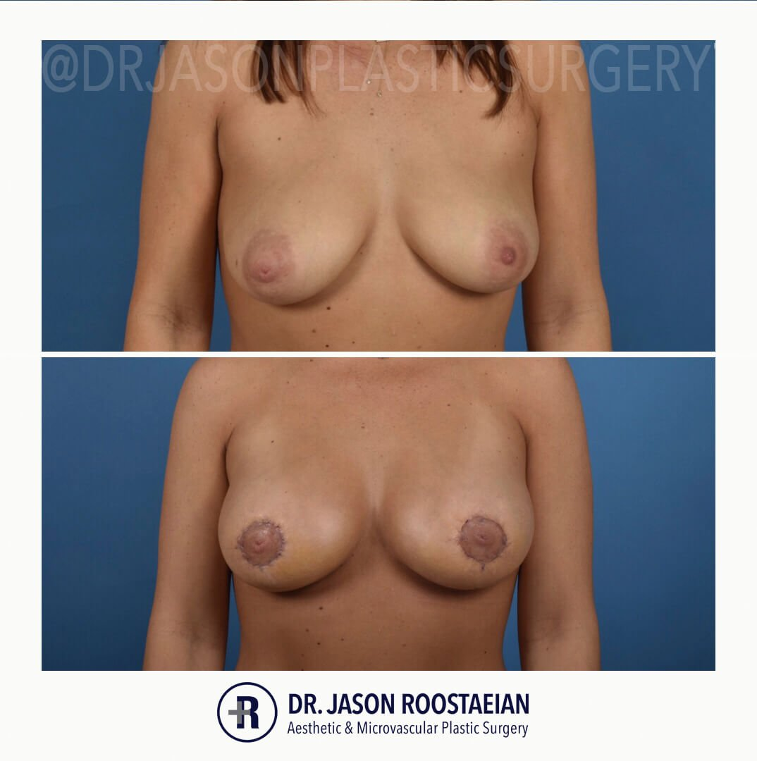 A frontal before and after view of Dr. Jason Roostaeian's breast lift and augmentation patient