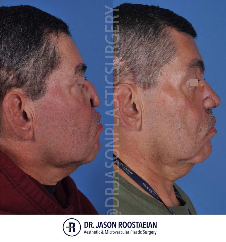 A right lateral view of Dr. Jason Roostaeian's facial reconstructive surgery male patient