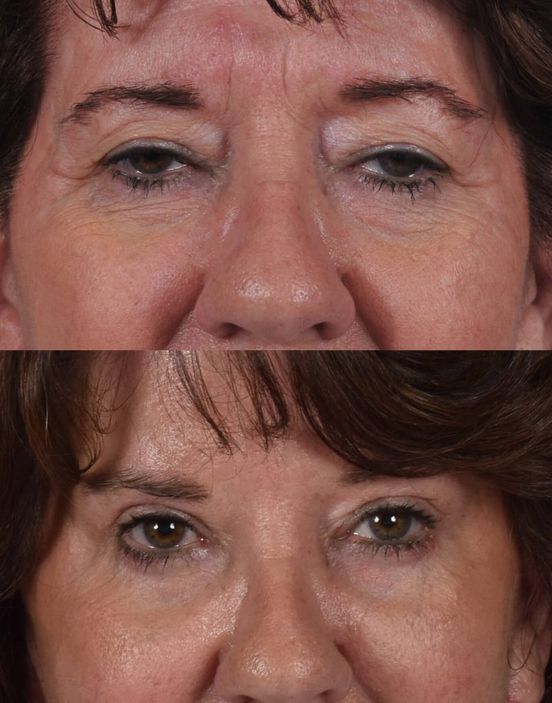A close up frontal before and after view of Dr. Jason Roostaeian's natural looking eye lift patient