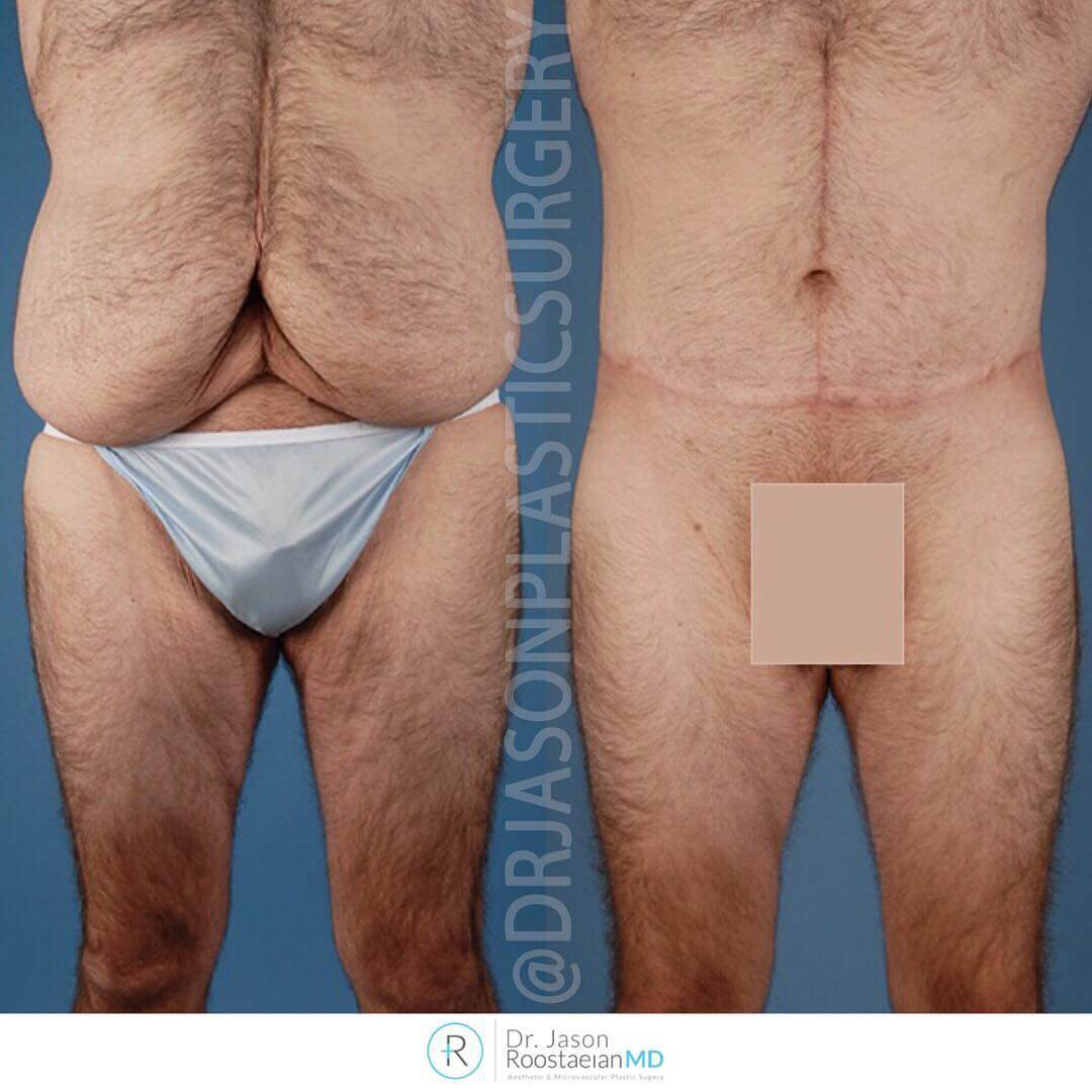 A frontal before and after view of Dr. Jason Roostaeian's natural looking tummy tuck patient