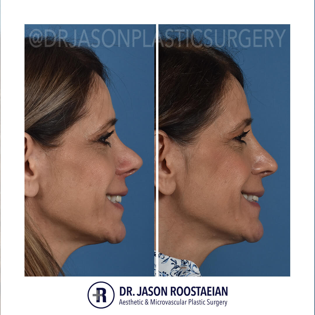 A right lateral smiling before and after view of Dr. Jason Roostaeian's natural looking revision rhinoplasty female patient