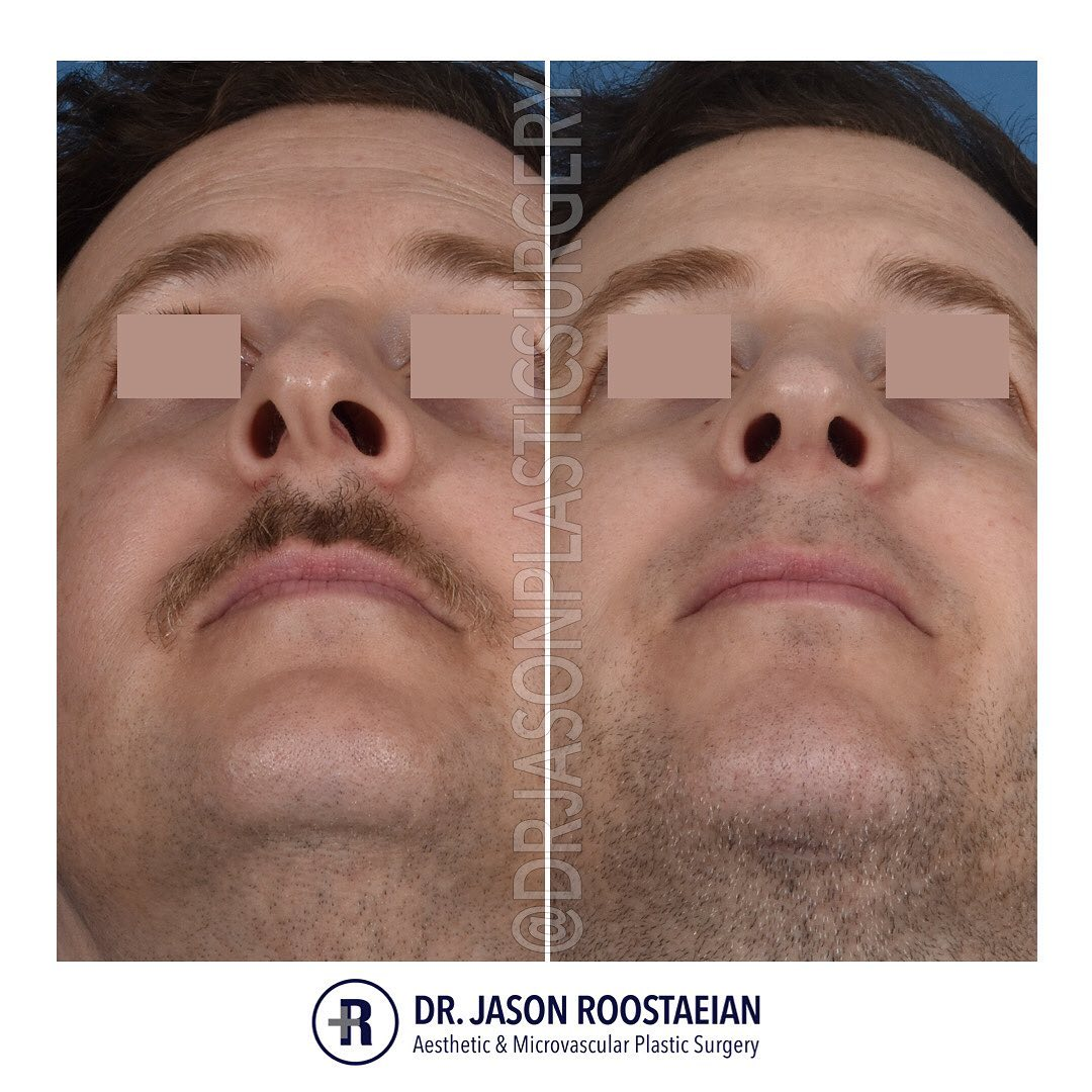 A basal before and after view of Dr. Jason Roostaeian's natural looking rhinoplasty, neck liposuction and chin augmentation male patient