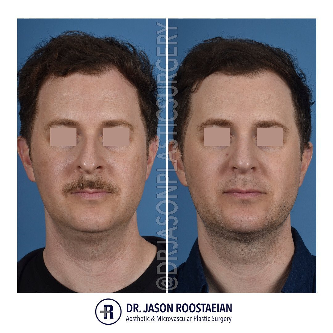 A frontal before and after view of Dr. Jason Roostaeian's natural looking rhinoplasty, neck liposuction and chin augmentation male patient