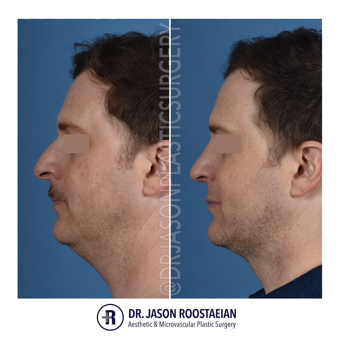 A left lateral before and after view of Dr. Jason Roostaeian's natural looking rhinoplasty, neck liposuction and chin augmentation male patient