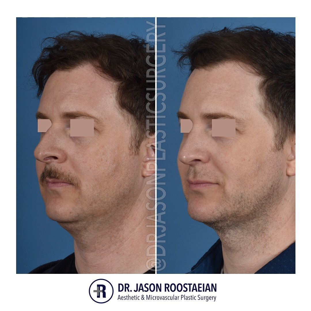 A left oblique before and after view of Dr. Jason Roostaeian's natural looking rhinoplasty, neck liposuction and chin augmentation male patient