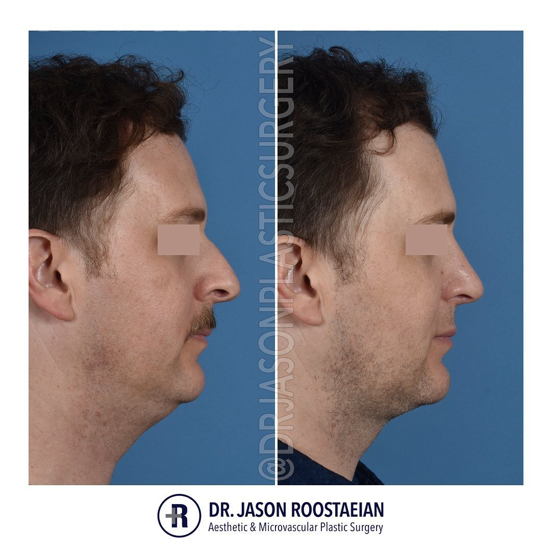 A right lateral before and after view of Dr. Jason Roostaeian's natural looking rhinoplasty, neck liposuction and chin augmentation male patient