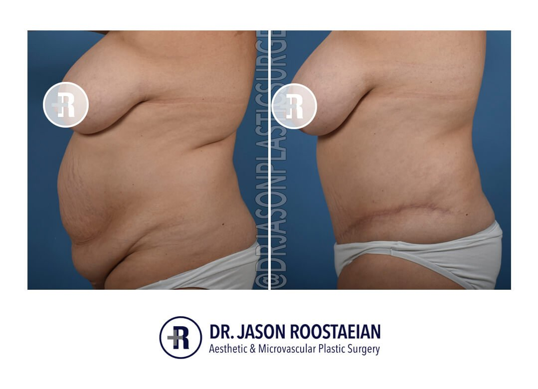A left lateral before and after view of Dr. Jason Roostaeian's natural looking tummy tuck female patient