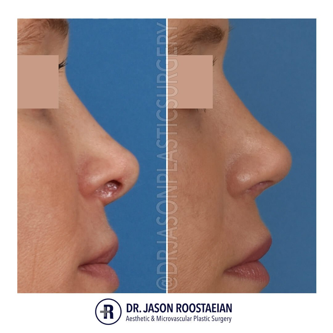 A right lateral before and after view of Dr. Jason Roostaeian's natural looking revision rhinoplasty female patient