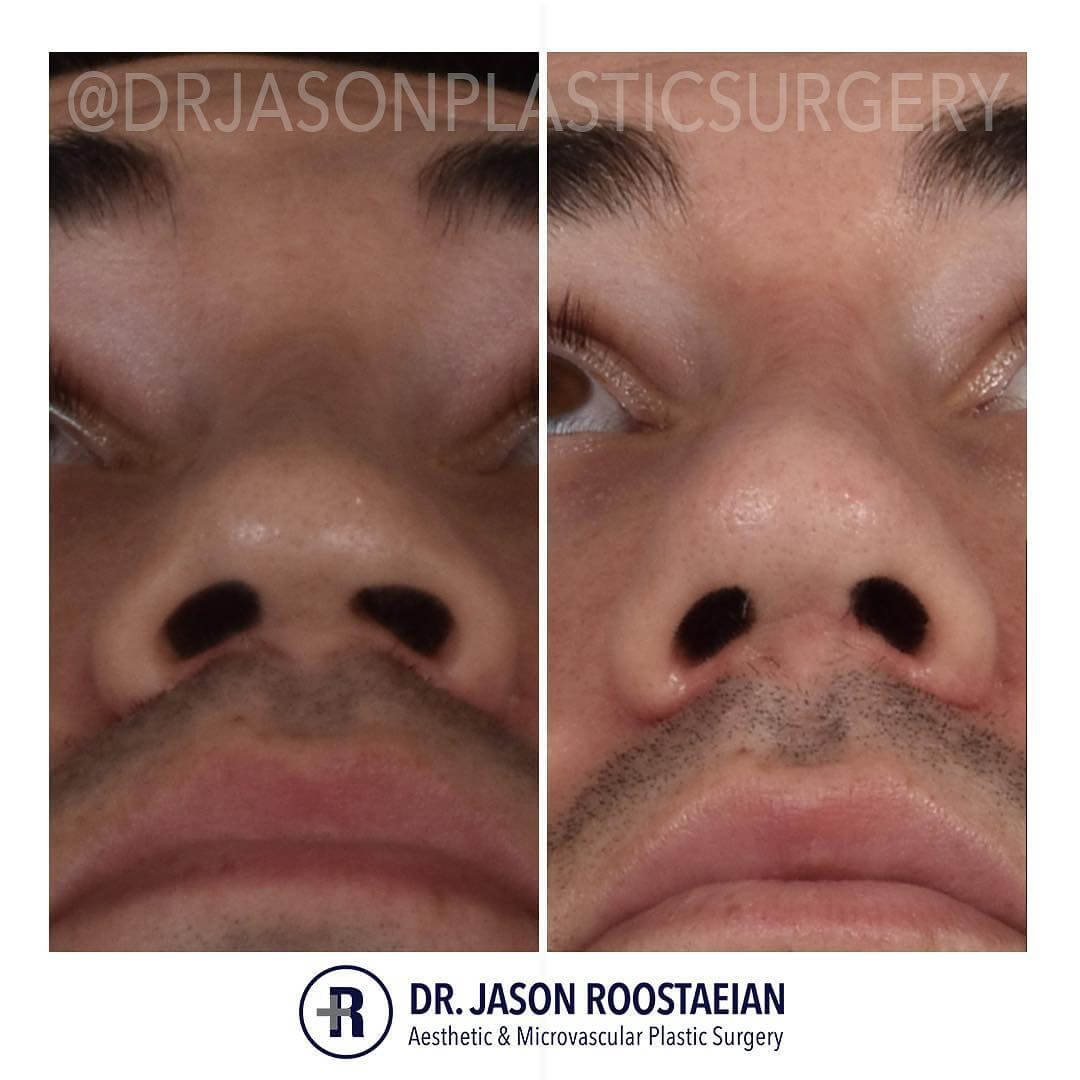 A basal before and after view of Dr. Jason Roostaeian's natural looking revision rhinoplasty male patient