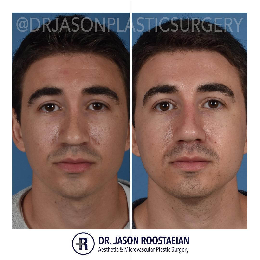 A frontal before and after view of Dr. Jason Roostaeian's natural looking revision rhinoplasty male patient