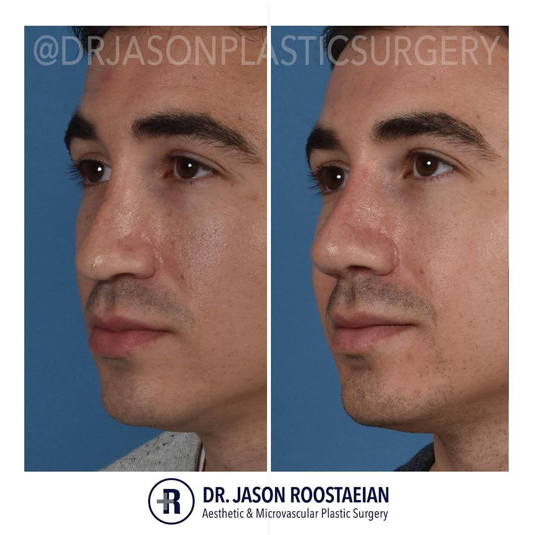 A left oblique before and after view of Dr. Jason Roostaeian's natural looking revision rhinoplasty male patient